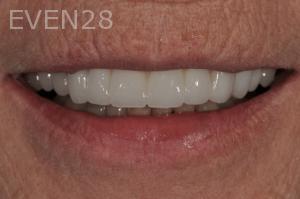 Aria-Irvani-After-Dental-Crown-5