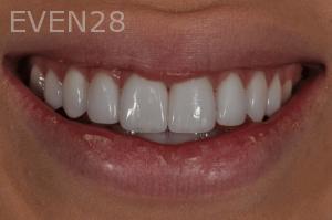 Aria-Irvani-After-Dental-Crown-6