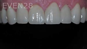 Aria-Irvani-After-Porcelain-Veneers-12