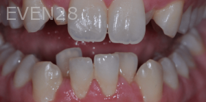 Aria-Irvani-Before-Clear-Aligners-11