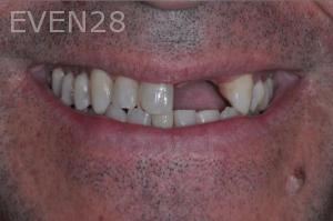 Aria-Irvani-Before-Dental-Implants-13