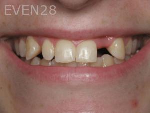 Aria-Irvani-Before-Dental-Implants-14