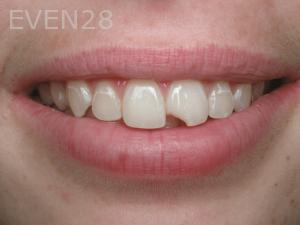 Aria-Irvani-Before-Tooth-Bonding-16