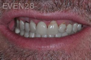 Aria-Irvani-Dental-Crowns-before-2