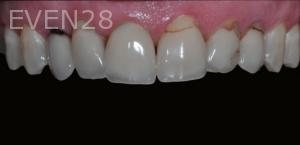 Aria-Irvani-Porcelain-Veneer-Before-3b