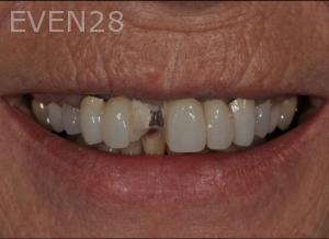 Aria-Irvani-Before-Dental-Crown-5
