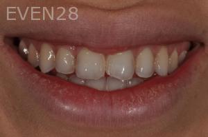 Aria-Irvani-Before-Dental-Crown-6