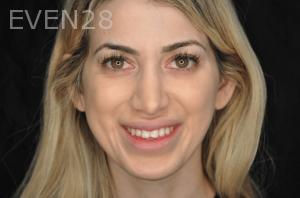 Aria-Irvani-Before-Dental-Crown-7