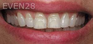 Aria-Irvani-Before-Porcelain-Veneers-10