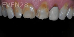 Aria-Irvani-Before-Porcelain-Veneers-12