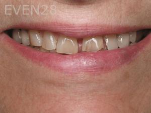 Aria-Irvani-Before-Porcelain-Veneers-5