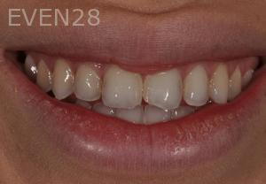 Aria-Irvani-Before-Porcelain-Veneers-9