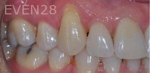 Aria-Irvani-Gum-Grafting-Before-1