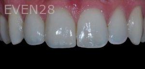 Aria-Irvani-Porcelain-Veneer-After-13