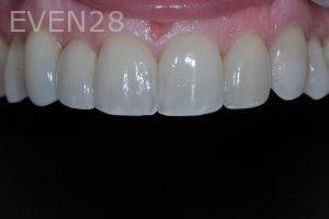Aria-Irvani-Porcelain-Veneer-After-3