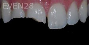 Aria-Irvani-Porcelain-Veneer-Before-13