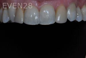 Aria-Irvani-Porcelain-Veneer-Before-3
