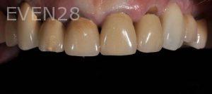 Aria-Irvani-Smile-Makeover-Before-2