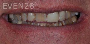 Aria-Irvani-Smile-Makeover-Before-3