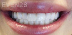 Arsany-Labib-Procelain-Veneers-After-1