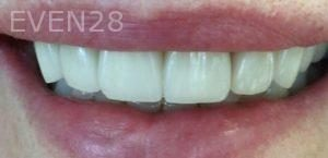 Arsany-Labib-Procelain-Veneers-After-2
