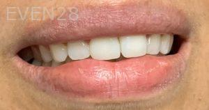 Arsany-Labib-Procelain-Veneers-After-3