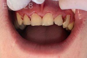 Arsany-Labib-White-Fillings-Before-1