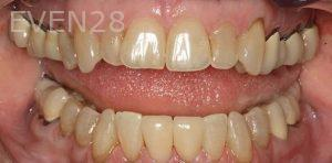 Kenneth-Cho-Dental-Crowns-After-1