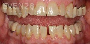 Kenneth-Cho-Dental-Crowns-Before-1