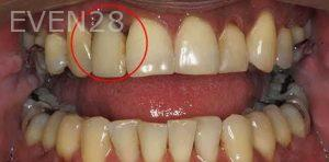 Kenneth-Cho-Dental-Implants-Before-2