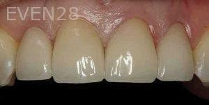 Kenneth-Cho-Porcelain-Veneers-After-1