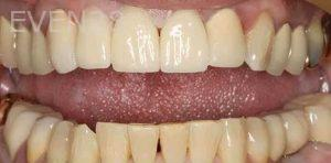 Kenneth-Cho-Porcelain-Veneers-After-2