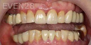 Kenneth-Cho-Porcelain-Veneers-After-3