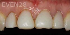 Kenneth-Cho-Porcelain-Veneers-Before-1