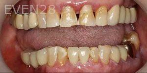 Kenneth-Cho-Porcelain-Veneers-Before-3