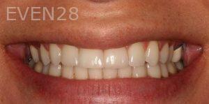 Sean-Saghatchi-Dental-Bonding-After-01