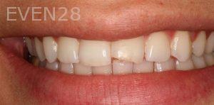 Sean-Saghatchi-Dental-Bonding-Before-01
