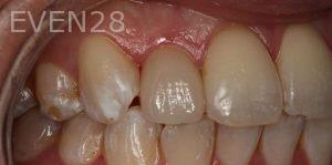 Sean-Saghatchi-Dental-Crown-After-1