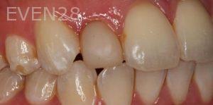 Sean-Saghatchi-Dental-Crown-Before-1