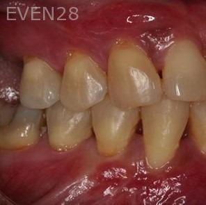 Sean-Saghatchi-Dental-Gum-Grafting-After-1a