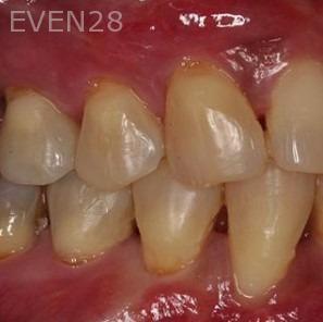 Sean-Saghatchi-Dental-Gum-Grafting-After-1b