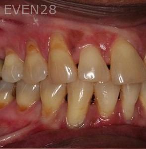 Sean-Saghatchi-Dental-Gum-Grafting-Before-1a