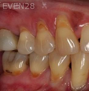Sean-Saghatchi-Dental-Gum-Grafting-Before-1b