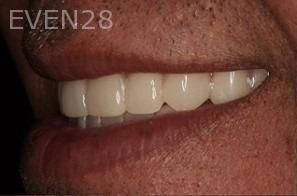 Sean-Saghatchi-Smile-Makeover-After-2b