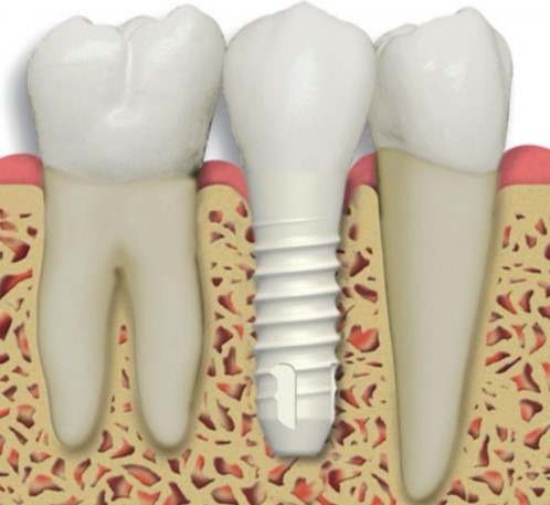 complete-full-ceramic-zirconia-holistic-Dental-implant