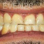 Amir-Larijani-Full-Mouth-Restoration-before-3