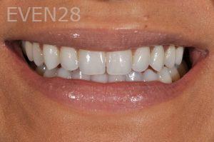Aria-Irvani-Dental-Implants-After-1