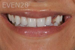 Aria-Irvani-Dental-Implants-Before-1