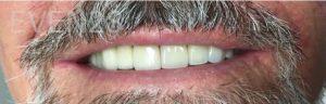 Garrett-Rubio-Dental-Bridge-after-1