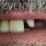 Garrett-Rubio-Dental-Bridge-before-1